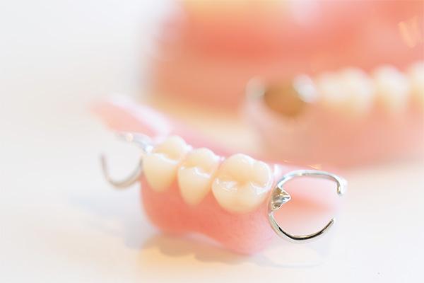 残存歯への負担を軽減した設計