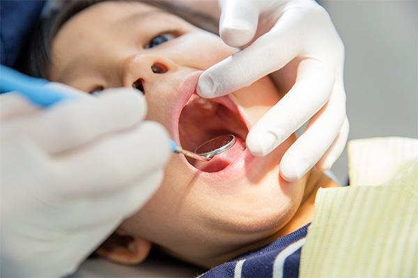 永久歯をきれいに並べるためのスペースを確保